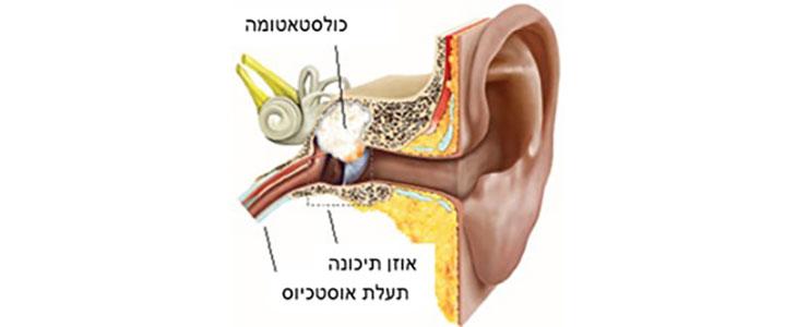 Mastoidectomy For Cholesteatoma Dr Sharon Ovnat Tamir
